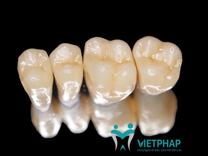 răng sứ kim loại thường có độ bền bao lâu