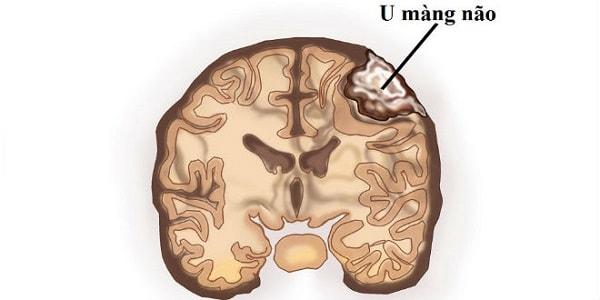 Cách nhận biết bản thân mắc bệnh u màng não 2