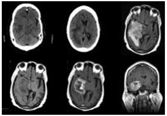 Cách phân loại mô học của u màng não 3