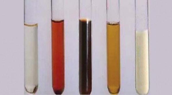 Đái ra máu - biểu hiện lâm sàng của bệnh lý thận tiết niệu 1