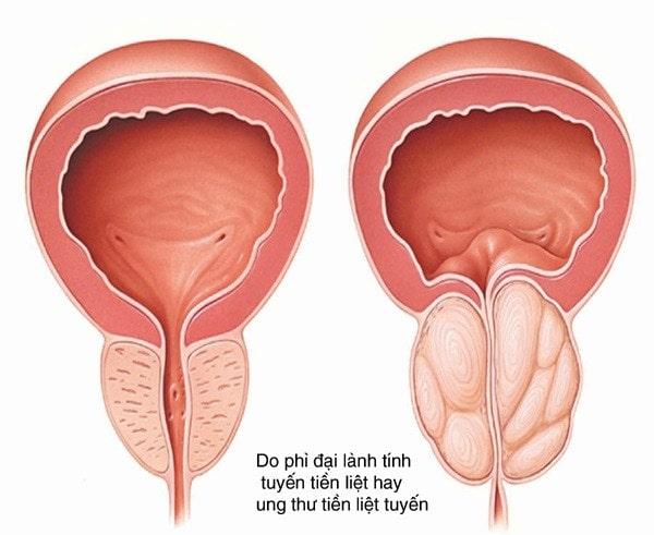 Đái ra máu - biểu hiện lâm sàng của bệnh lý thận tiết niệu 3